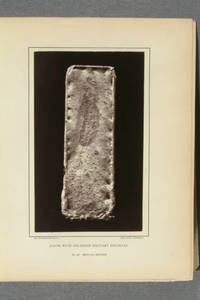 [Woodburytypes and heliotypes from photographs of specimens and photomicrographs in The medical and surgical history of the war of the rebellion, medical history. Part II, vol. 1, being the second medical volume]