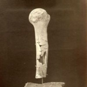 """Photograph no. 6. Head and six inches of shaft of right humerus successfully excised for gunshot fracture."""