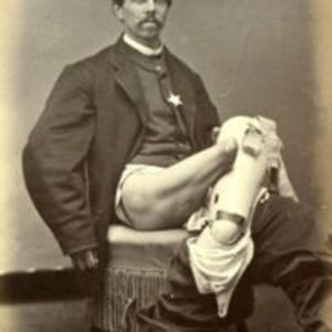 """Photographic series no. 134. Recovery after amputation of the right thigh, the leg having been carried away by a cannon ball."""