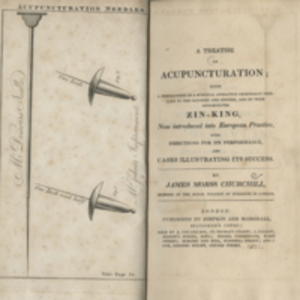 A treatise on acupuncturation
