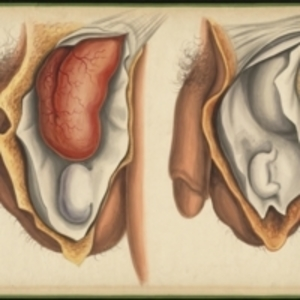 Teaching watercolor of a congenital hernia and an infantile hernia in male subjects