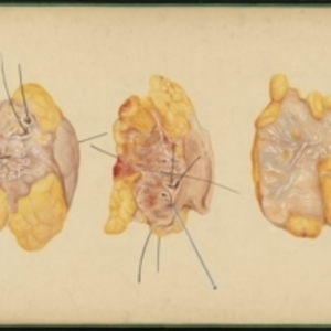Teaching watercolor of cross sections of a piece of removed tissue