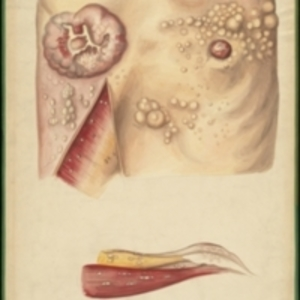 Large teaching watercolor of breast neoplasms in the skin and muscles of the breast