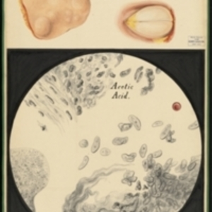 Teaching watercolor of removed masses in skin tissue and a microscopic view of the tissue