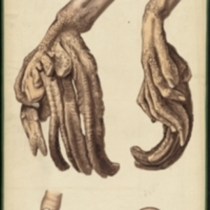 Teaching watercolor of a right hand with a skin disease that causes scaly skin and horn-like growths