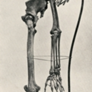 Young adult skeleton with tuberculosis spondylitis, commonly referred to as Pott's disease