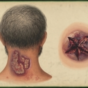 Teaching watercolor of skin disorder on the back of the neck, and of a star-shaped open wound