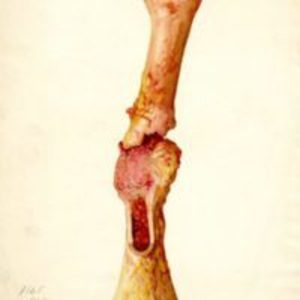 Colored drawing of fractured femur with cancerous growth