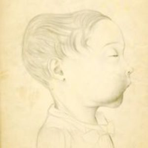 Pencil drawings of front and side view of head and face of child with sarcoma of the jaw