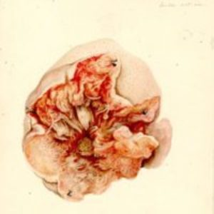Excised tumor, partially dissected