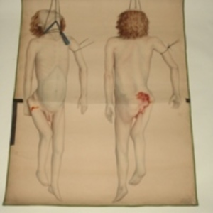 Teaching watercolor of hanging local subject with hip injury, 1848-1854