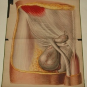 Teaching watercolor of femoral and inguinal hernias, after J. Lebaudy's The Anatomy of the Regions Interested in the Surgical Operations Performed upon the Human Body, 1848-1854