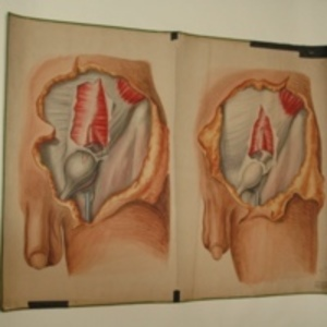 Teaching watercolor of male with inguinal hernia, after Richard Quain's The Anatomy of the Arteries of the Human Body, 1848-1854