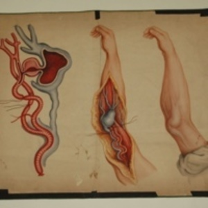 Teaching watercolor of aneurysm in arm, after Charles Bell's Practical Essays, 1848-1854