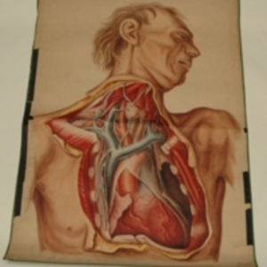Teaching watercolor of man with surgically opened chest, 1848-1854