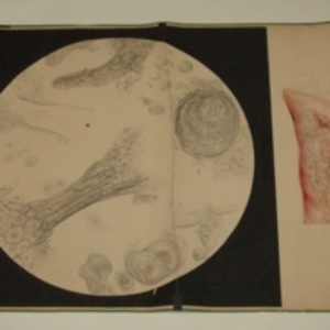 Teaching watercolor of human tissue, external and microscopic views, 1848-1854