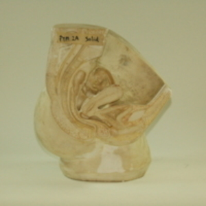 Replica of Dickinson-Belskie model of sectioned female reproductive anatomy, 1945-2007
