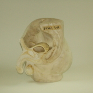 Replica of Dickinson-Belskie model of sectioned male reproductive anatomy, 1945-2007