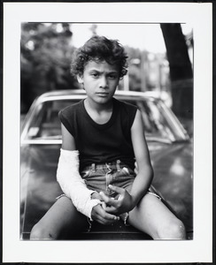 Boy with cast on right arm sits on the hood of a car