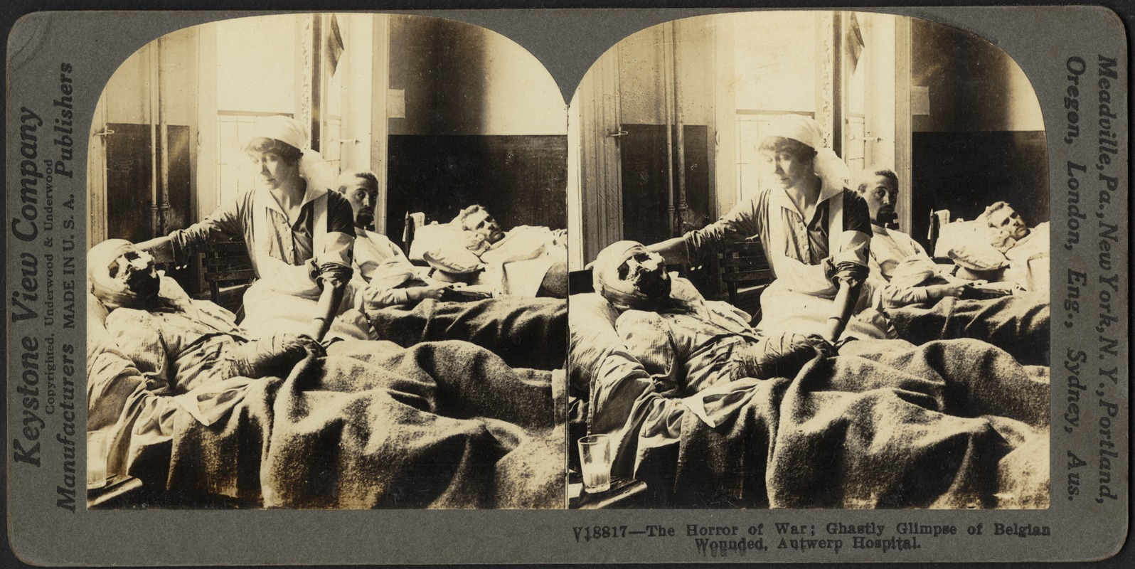 The horror of war: ghastly glimpse of Belgian wounded, Antwerp hospital