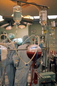 Autotransfusion at Massachusetts General Hospital liver operation, Boston