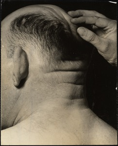 Inspecting ridges on scalp