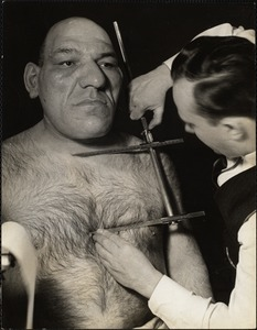 Dr. Seltzer measuring height of sternum